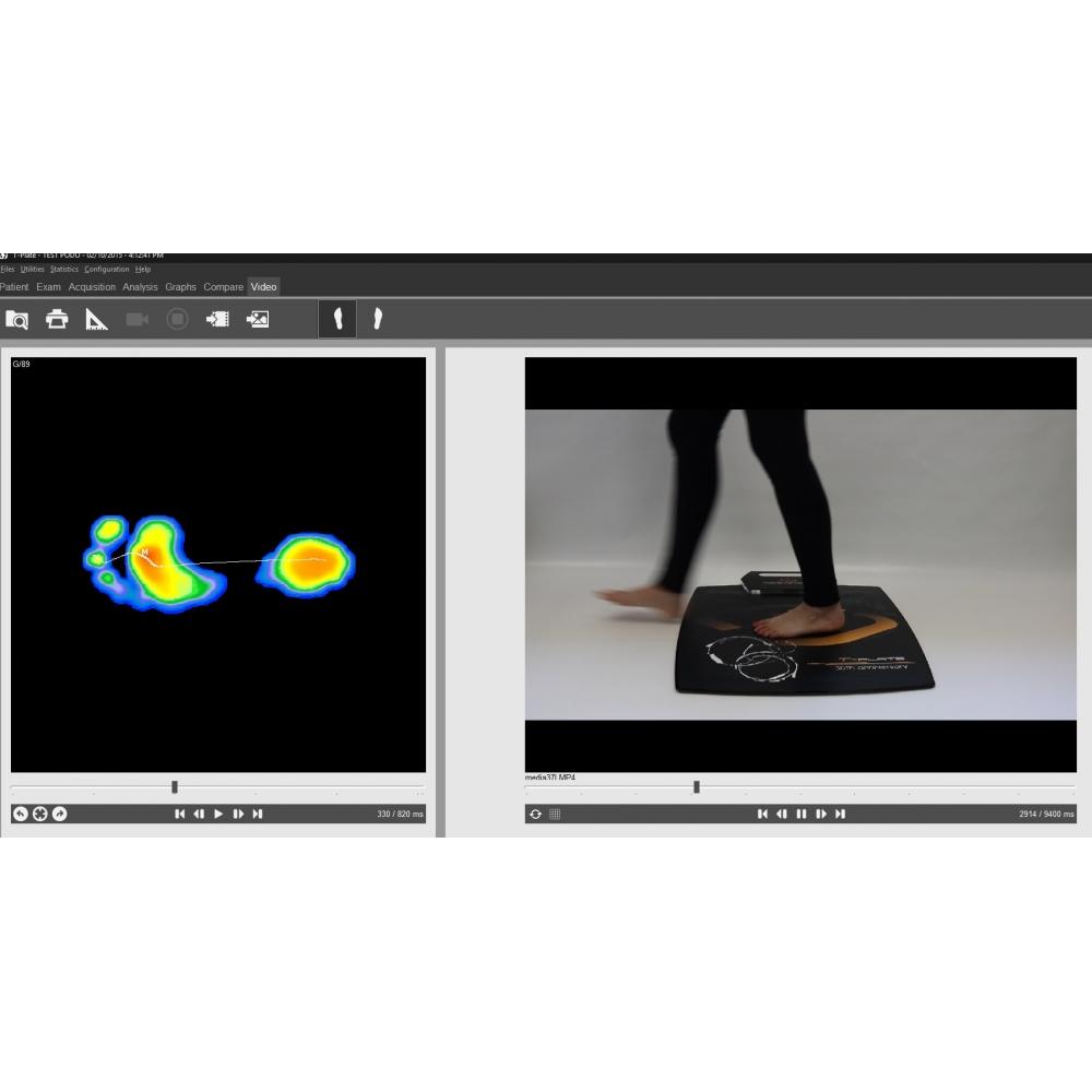 Πελματογράφος Smart Plate